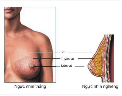 Nâng ngực túi giọt nước